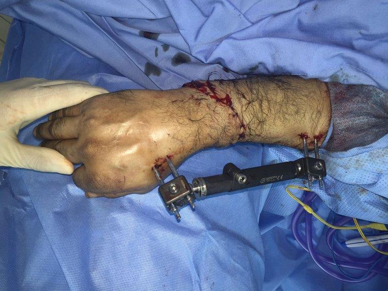 الخبر: فريق جراحي يعيد يد مبتورة بالكامل لمقيم فقدها في إصابة عمل (صور)