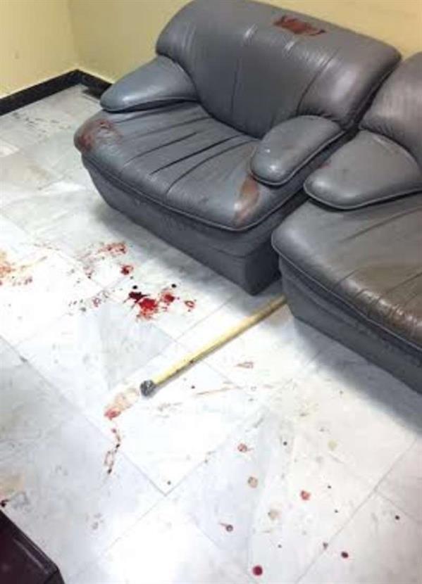 مصادر تكشف تفاصيل وصور جديدة لمشاجرة مستشفى حائل