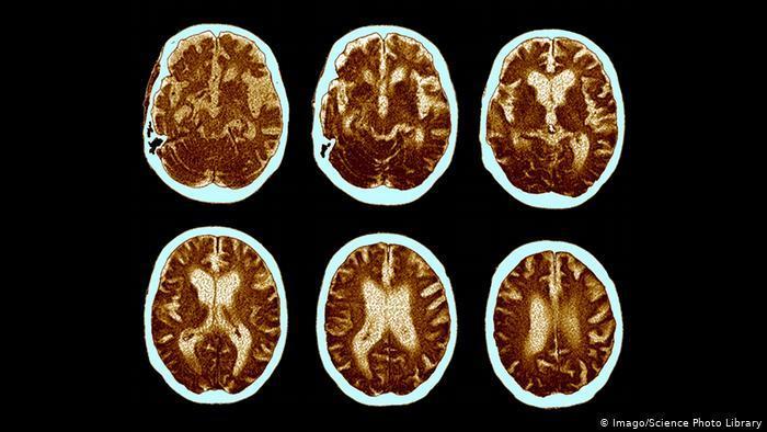 دراسة: هذا المزيج الغذائي يحد من آثار مرض الزهايمر