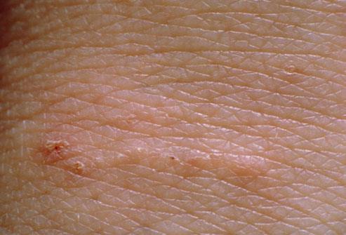 4- آخر مرحلة للجرب هي ظهور ندبات على شكل أثر مسمار في الجلد. هذه الخطوط البارزة عادة ما تكون بيضاء، رمادية اللون أو بلون الجلد
