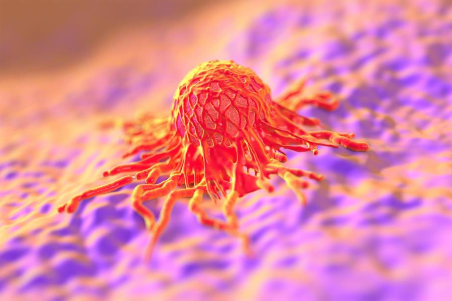 تدمر السرطان في 3 جلسات.. علماء يتوصلون لتقنية ثورية جديدة في علاج الأورام