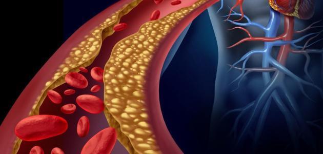 هذه علامات على ارتفاع نسبة الكوليسترول في الدم