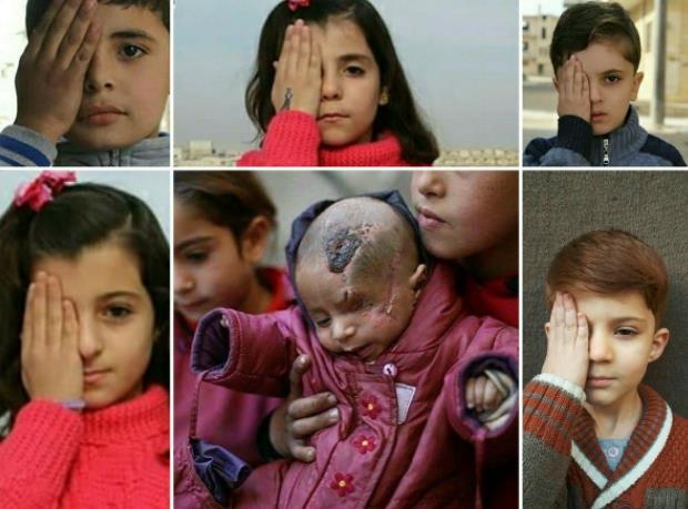 الطفل كريم.. قصة مأساوية لرضيع سوري فقد عينه وكُسرت جمجمته في قصف لقوات بشار