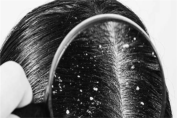 قشرة الرأس هل تسبب تساقط الشعر؟... خبيرة تجيب