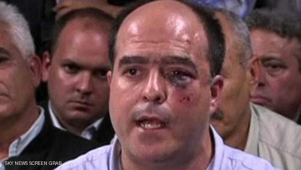 خوليو بوؤخيس..عصو البرلمان الفنزويلي كما ظهر بعد الاشتباك داخل البرلمان