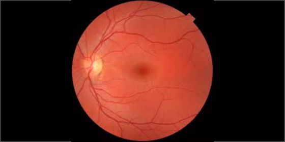 Fundus Test