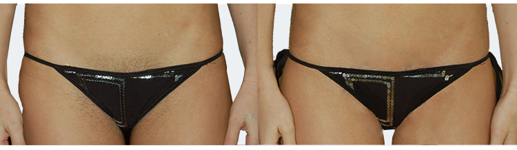 Ipl bikini hair removal can