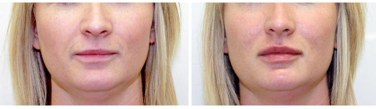 Dermal Filler - Before and After