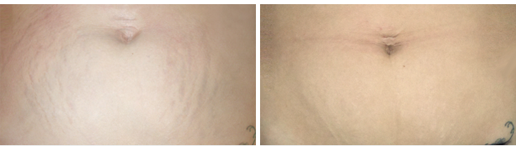 Microneedling- Before and After