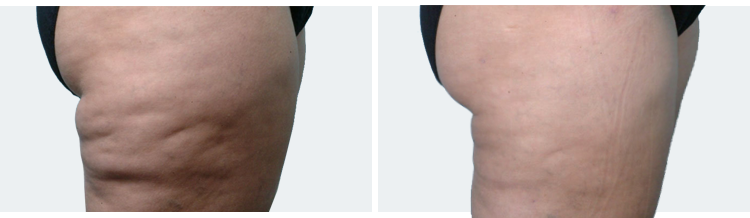 Endermologie - Before and After