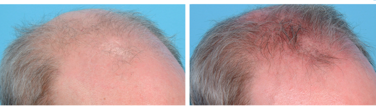 Finasteride - Before and After
