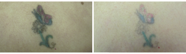Tattoo Removal - Before and After