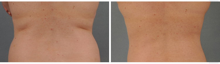 Liposuction In London Amp The Uk Courthouse Clinics