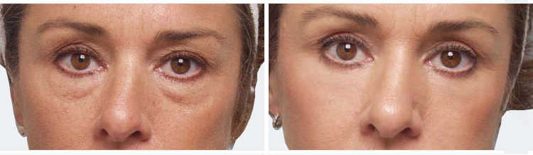 Eyelid Surgery from Courthouse Clinics