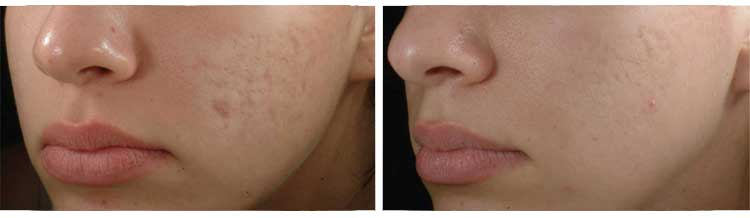Microdermabrasion In The Uk From Courthouse Clinics