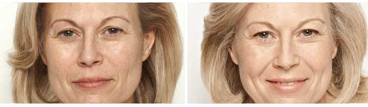Omnilux Treatment - Before and After
