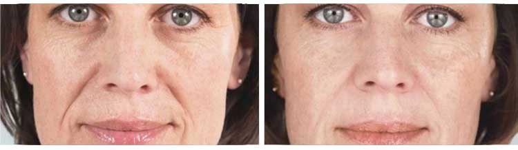 Sculptra® - Before and After