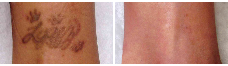 laser tattoo removal image 1