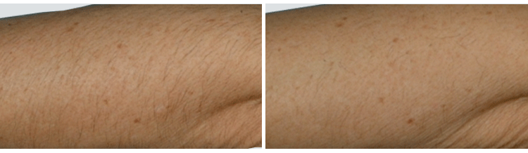 laser-hair-removal-case-study-before-after-1