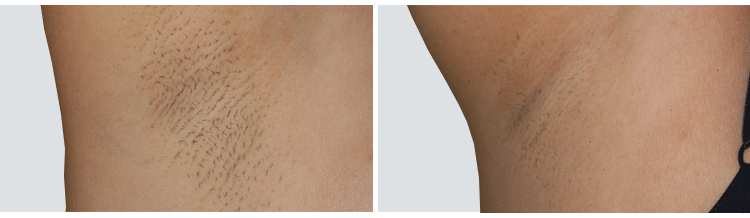 full brazilian laser hair removal before and after � best