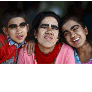 """Free Laser Hair Removal Deal for """"Werewolf"""" Family"""