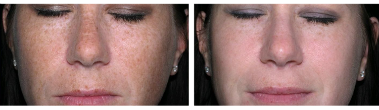 IPL treatments - Before and After