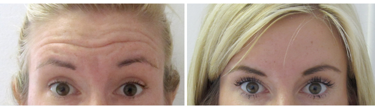 Botox - Frown Lines