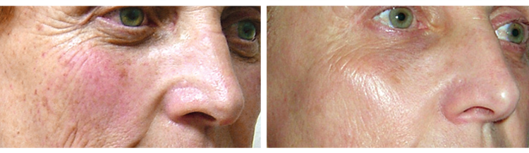 Harmony ClearLift - Before and After