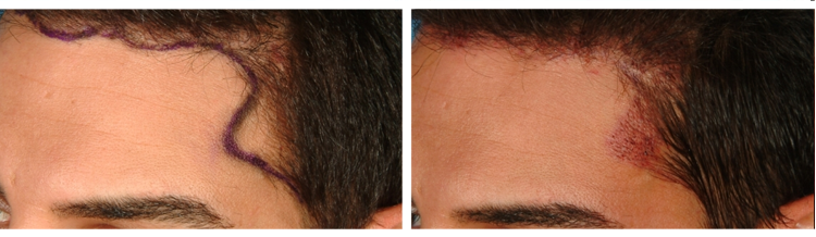 FUE Hair Transplant - Before and After