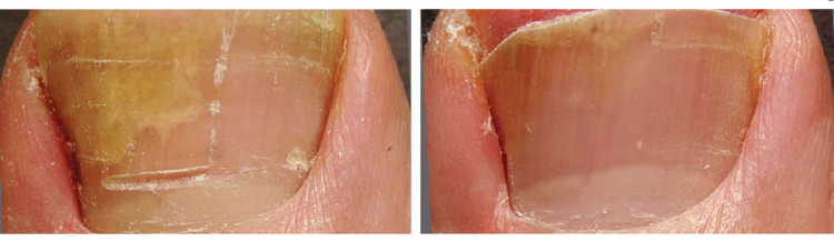 Laser Nail Fungus Removal - Before and After
