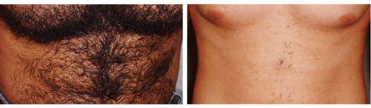 Laser Hair Removal - Before and After
