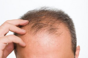 Developments in cure for alopecia and baldness