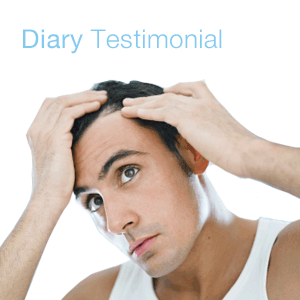 diary Testimonial on hair restoration
