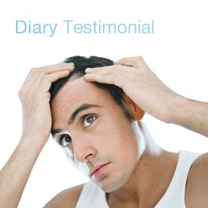 diary Testimonial on hair restoration