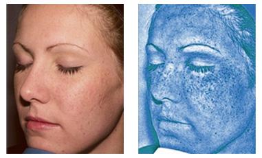 UV Skin Scan