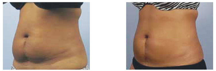 Fat Freezing- before and after