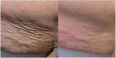 Laser Skin Resurfacing - Before and After