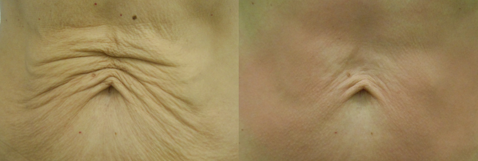 Soprano Skin Tightening - Before and After