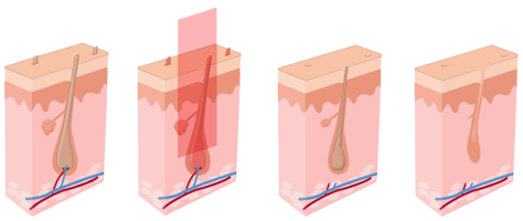 laser hair removal London