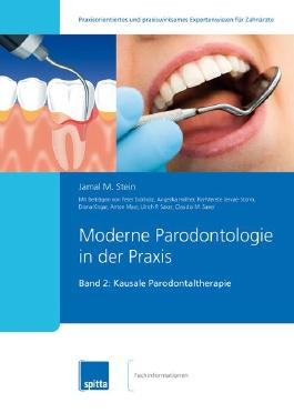 Moderne Parodontologie in der Praxis