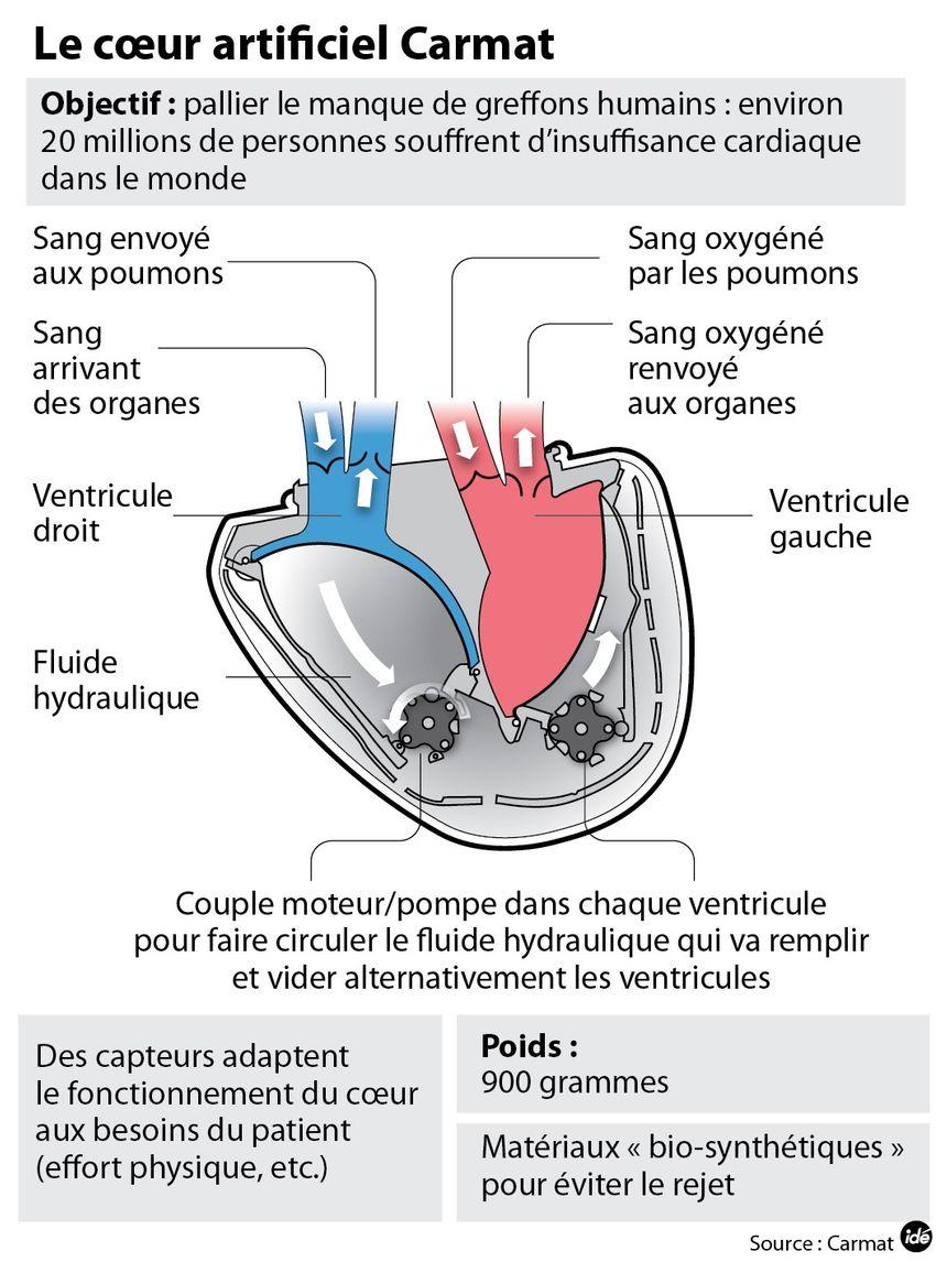 Le coeur artificiel de Carmat, comment ça marche - IDÉ