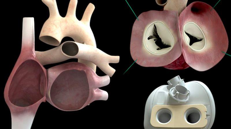 L'implantation d'un cœur artificiel n'a encore jamais été concluante