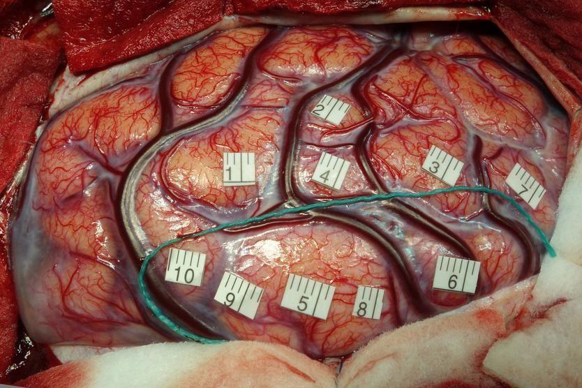 Opération sur une tumeur du cerveau par les équipes du CHRU de TOURS - Aucun(e)