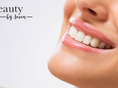 Tandenbleekbehandeling (40 min)