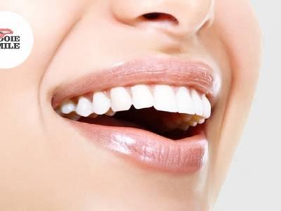 Tandenbleken + evt. polijsten of tandendiamant