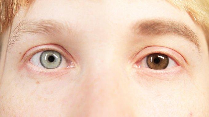 occhi marroni blu