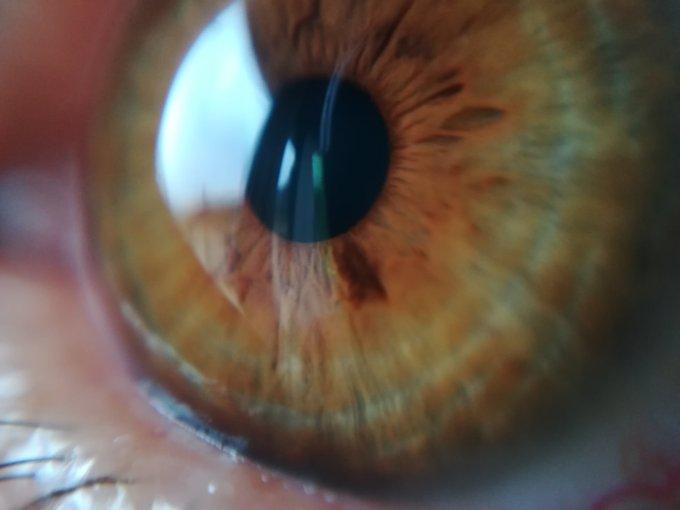 L'occhio umano da vicino, col cellulare e le lenti macro blips