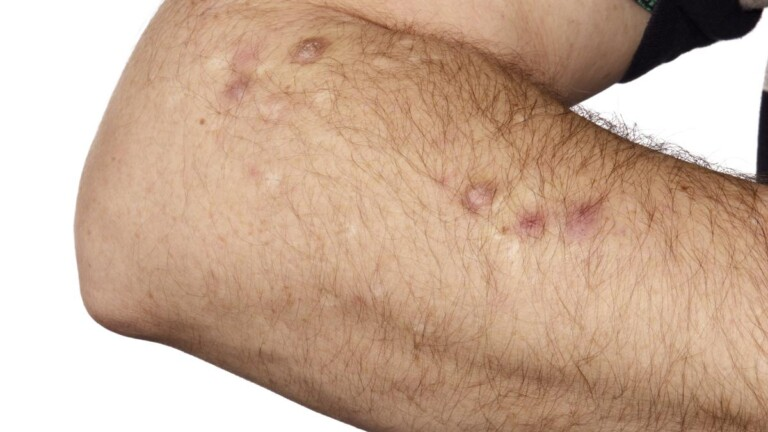Prurigo nodularis on the forearm. Dark nodules (prurigo nodularis) on the forearm in an adult male patient, a condition caused by repeated scratching leading to thickening and itching of the skin.