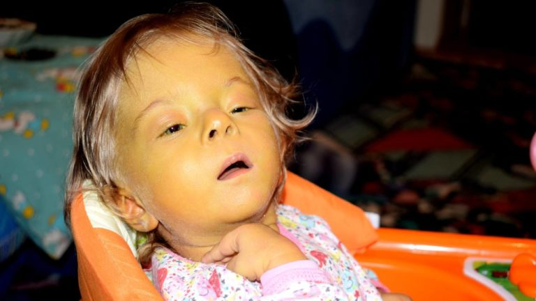 Nadiia kam mit mehreren Fehlbildungen zur Welt – nur eine Transplantation kann ihr Leben retten