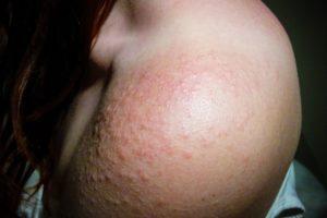 Blog Doctoome | Comprendre l'allergie solaire estivale
